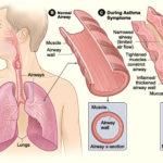 ಅಸ್ತಮಾ [Asthma]